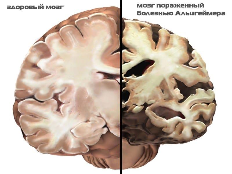 что такое болезнь Альцгеймера симптомы причины и признаки