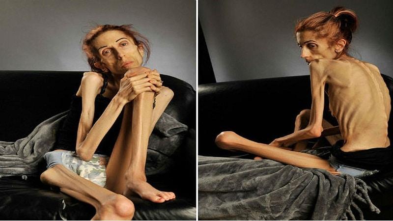 симптомы и признаки анорексии