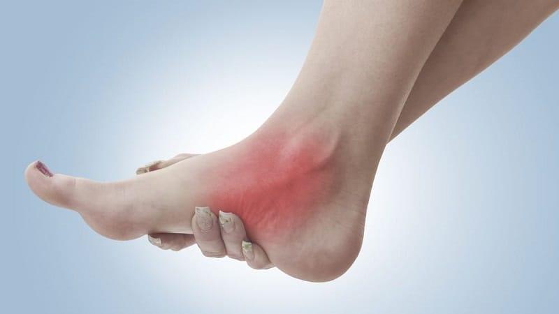 нейропатия ног