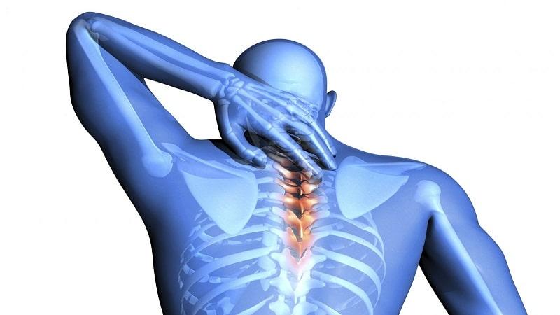 воспаление шейного нерва