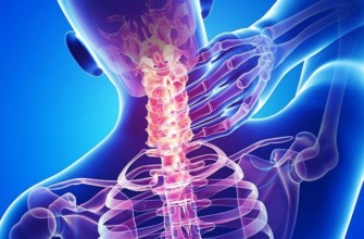 защемление нерва в шейном отделе симптомы и лечение