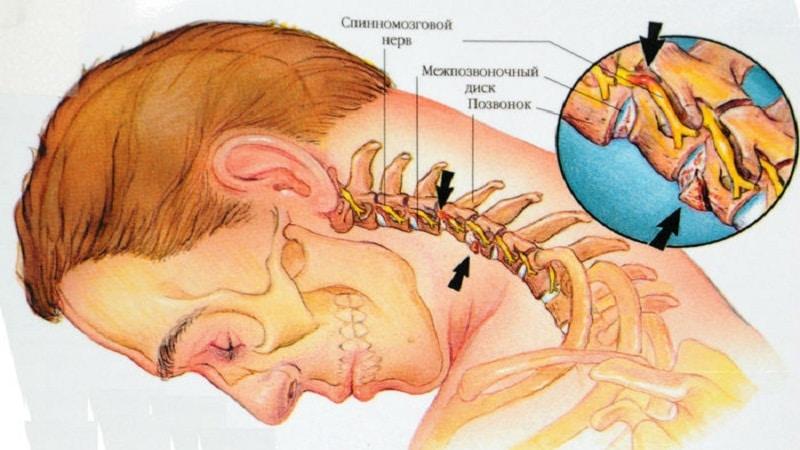лечение невралгии затылочного нерва