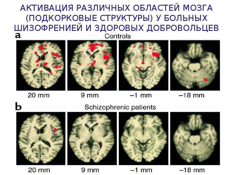 пройти психологический тест на шизофрению