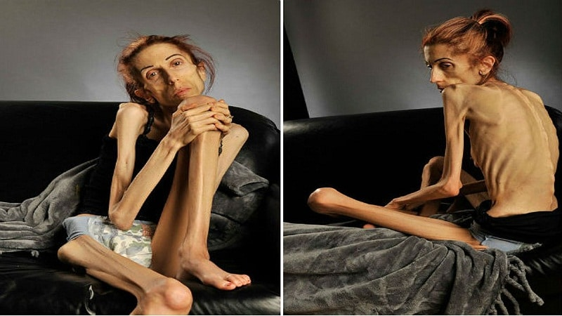 the dangerous issues arising from anorexia nervosa and bulimia Anorexia nervosa news deadliest deadliest psychiatric disorder: anorexia mortality rates in individuals with eating disorders are high not only.