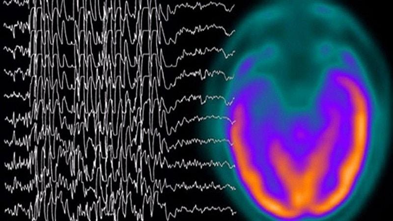 симптомы височной эпилепсии
