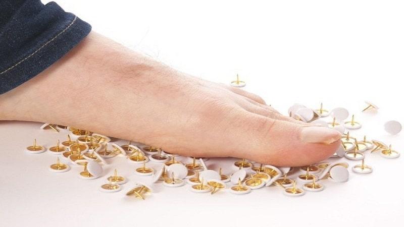 нейропатия нижних конечностей симптомы и лечение